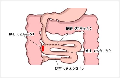 図:クローン病の症状
