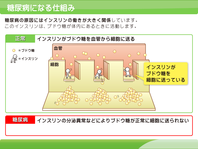 【画像】糖尿病イメージ画像
