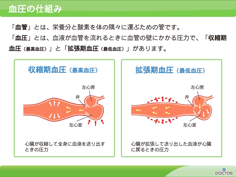【画像】高血圧症イメージ画像