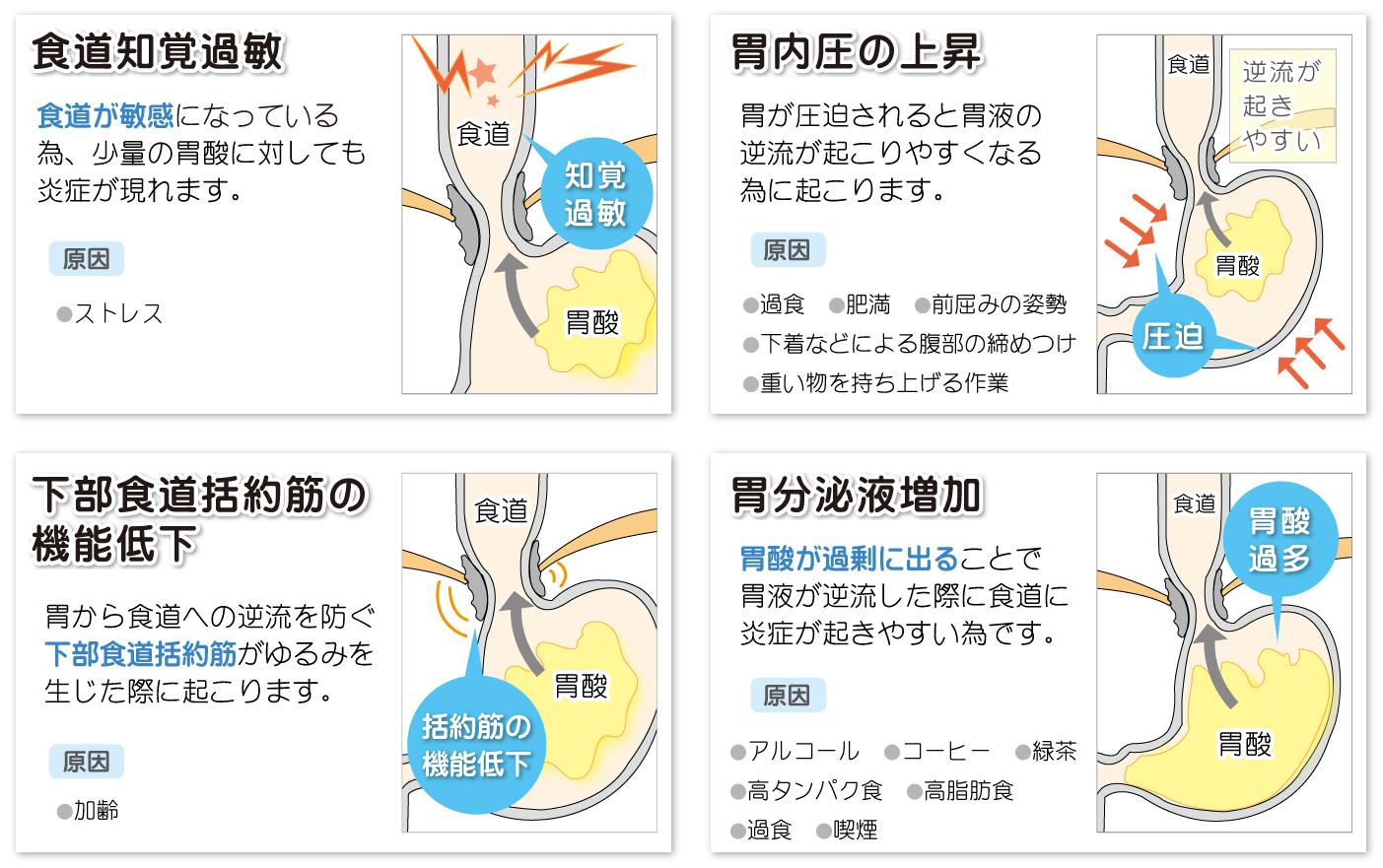 【画像】逆流性食道炎の仕組み解説イラスト
