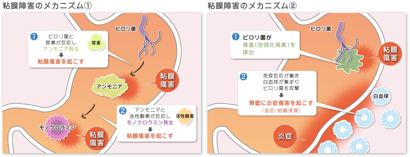 【画像】ピロリ菌解説イラスト