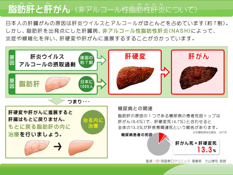 【画像】脂肪肝解説イラスト
